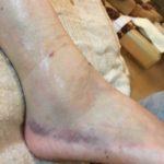 捻挫と思ってたら、実は骨折していた足首