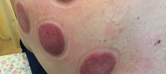 吸い玉の痕