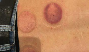 吸い玉の痕、胃の裏側
