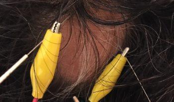 円形脱毛症/鍼灸治療