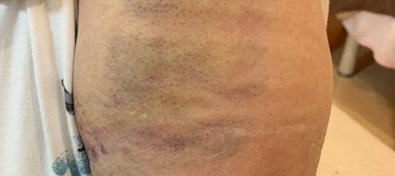 上腕骨頚部骨折 整骨院 貝塚 岸和田